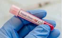 فيروس نيباه الجديد