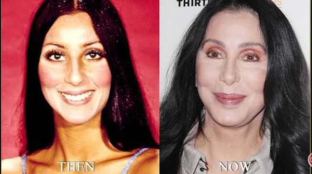 Cher; the actress and singer