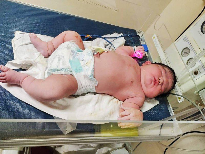 Doctores explican por qué esta guagua pesó 6,3 kilos al nacer