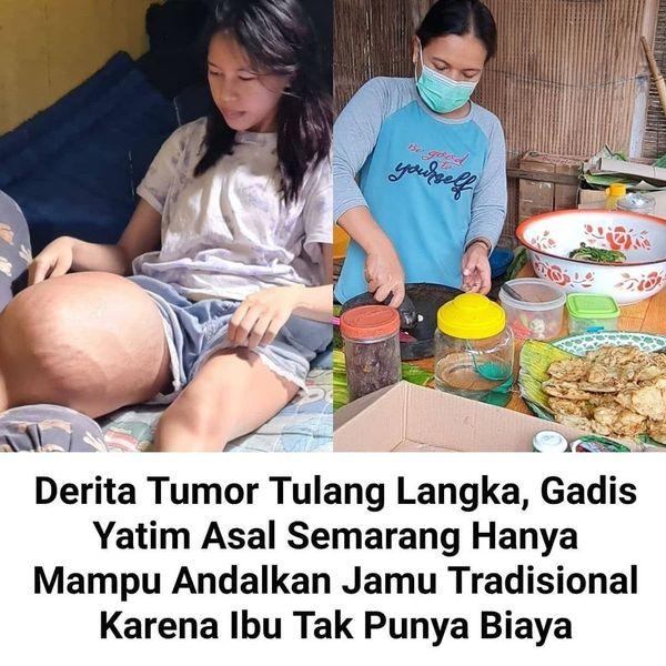 Penderita tumor langka