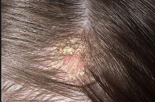 Obat Luka Borok di Kepala, Kaki / Tangan TERMUJARAB & Aman
