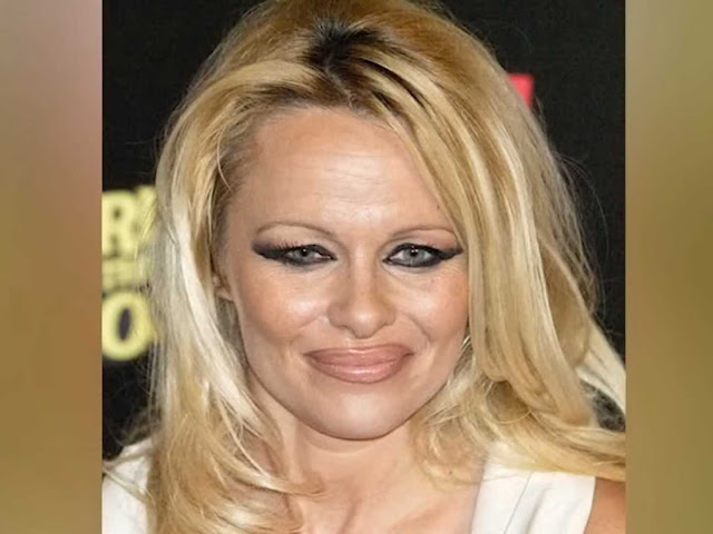 Pamela Anderson After Surgery