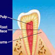 What is Tooth Sensitivity?