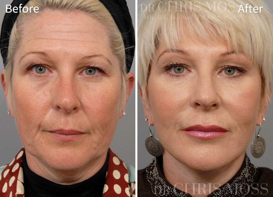 Before and After pictures of a Facelift