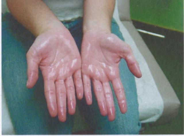 Cara Mengatasi Hyperhidrosis terutama pada telapak tangan dan kaki yang sering berkeringat?