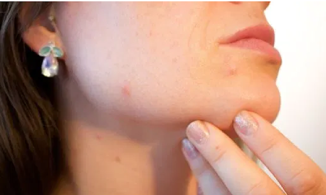 Cause and Treatment Tips of Mild Acne  It is undeniable that acne appearance is difficult to avoid and prevent, because there are many causes, internally and externally. The cause of acne on the face is different from the cause of acne on the back. Well, one type of acne that often occur on the skin is the mild acne.  Causes of Mild Acne  Before you know the various ways to get rid of mild acne naturally, you should first know its causes. Here are some of the causes of mild acne:  Genetic Genetic factors are the main factors causing mild acne to arise. When you have a parent, who does have acne and oily skin types, the chances are you will also experience the same thing.  Hormone Hormones that are unbalanced during puberty and menstruation, or when you're stressed are the triggers of mild acne breakouts. This is because the unbalanced androgens hormone will cause excess oil production and lead to acne.  Lifestyle Unhealthy lifestyles such as rarely cleaning the skin, eating junk foods, and lack of adequate rest will make mild acne arise. The before-mentioned lifestyle will trigger excess sebum production and inhibit the regeneration of skin cells.  Tips to Accelerate the Treatment of Mild Acne  Pay attention to various support tips that would be useful to accelerate the process of healing small acne as follows:  Wash Your Face Every Day The mild acne on your skin will not disappear if you do not regularly wash your face every day. In fact, your acne will get worse along with the amount of dirt and dust attached to the skin in a span of 1 day only. Therefore, wash your face regularly 2 times a day by applying the correct face wash, so that dust and dirt can be lifted immediately from your skin.  Avoid Stress As mentioned above, one of the things that make mild acne arises is an excessive stress factor. If you are stressed, immediately do everything possible to reduce the stress, for example by doing your hobby. Stress will only increase the production of sebum that w