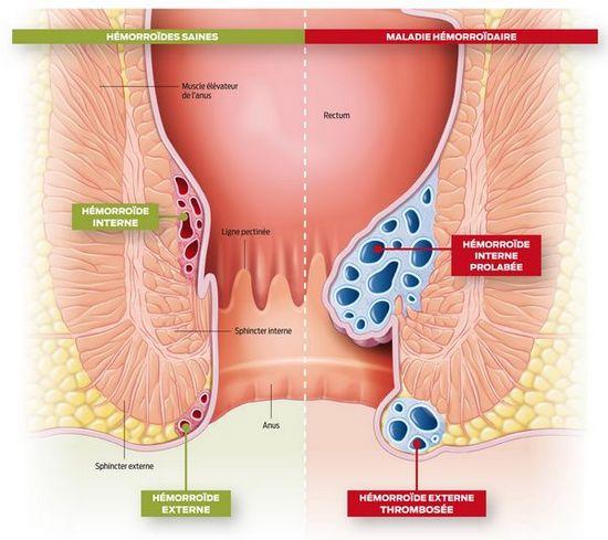 Qu'est-ce que des hémorroïdes, tout savoir