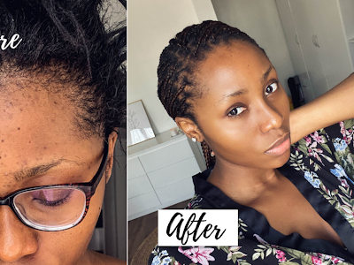 """How To Easily Clear Black Spots, Acne, And Make Your Skin Glowing, Featuring """"Dimma Umeh"""""""