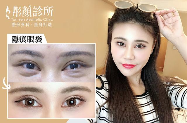 眼袋-除眼袋推薦-玻尿酸 眼袋-眼霜-眼袋 原因-彤顏診所-眼袋權威-整形外科-眼袋內開-眼袋 眼霜-消除