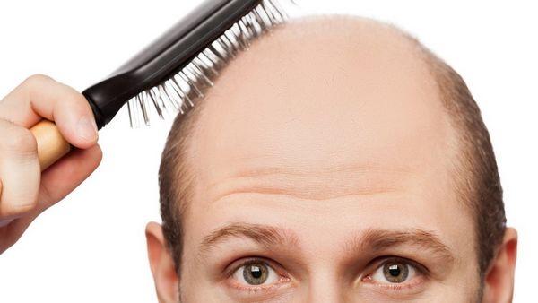 Alopécie : chute de cheveux, traitement huile essentielle