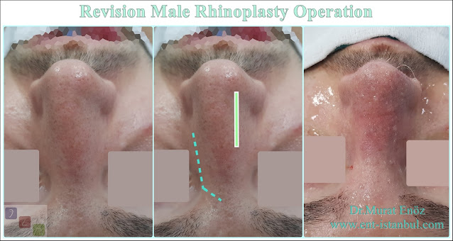 Secondary Revision Nose Job For Male Patient