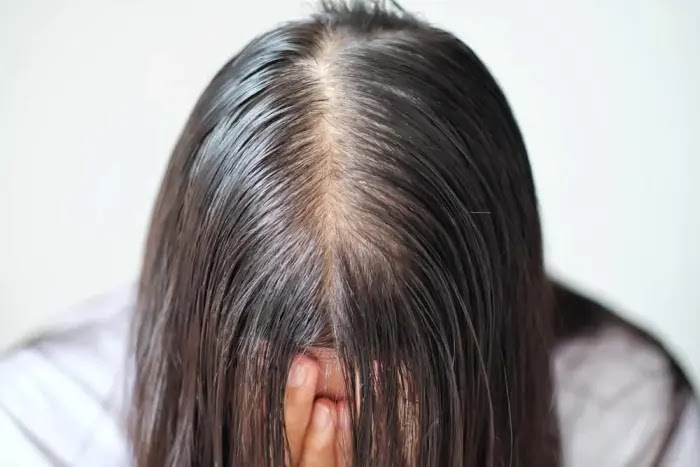 tips mengatasi minyak berlebih di kulit kepala dan rambut