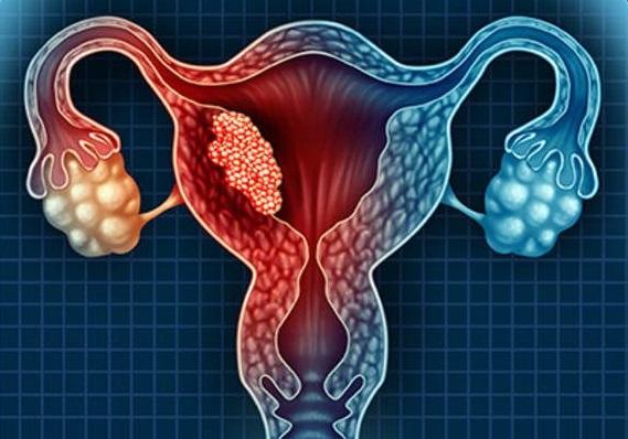 ما هو سرطان بطانة الرحم؟ كل ما تحتاجين معرفته حول سرطان بطانة الرحم!