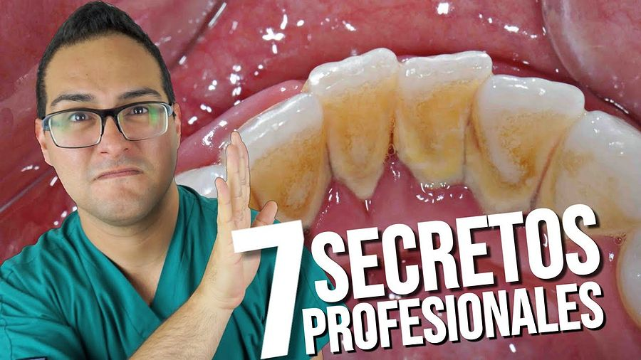 Cálculo Dental Como Quitar El Sarro De Los Dientes 7 Secretos Profesionales Odontofarma