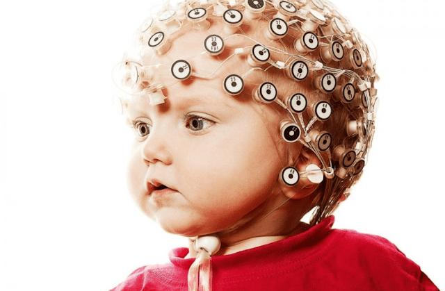 اعراض الكهرباء الزائدة عند الاطفال وأسباب زيادة كهرباء المخ
