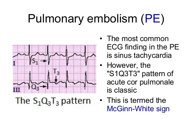 The Specific ECG Signs Of Pulmonary Embolism Such As S1 Q3 T3 Are Rarely Seen Except In Cases Massive