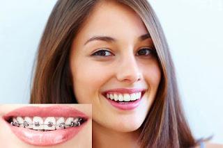 Các lưu ý chăm sóc răng miệng đúng cách cho mẹ bầu