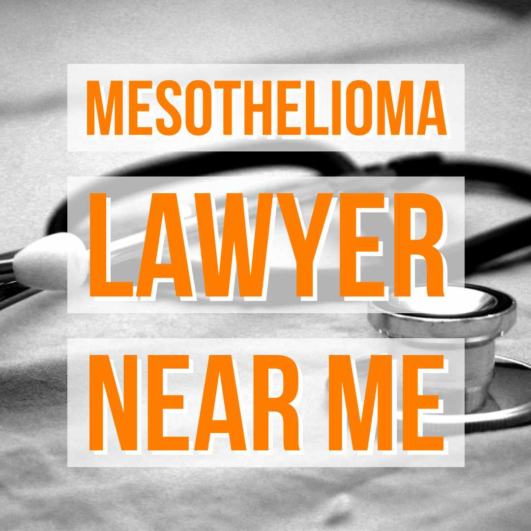 10 Things To Remember Before Hiring Mesothelioma Lawyers Mesothelioma Attorney Near You Directories Trendama