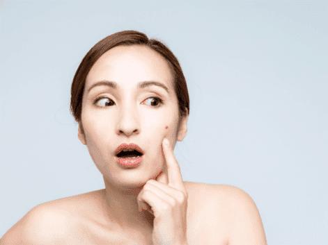 10 Cara Ampuh Menghilangkan Jerawat dengan Bahan Alami