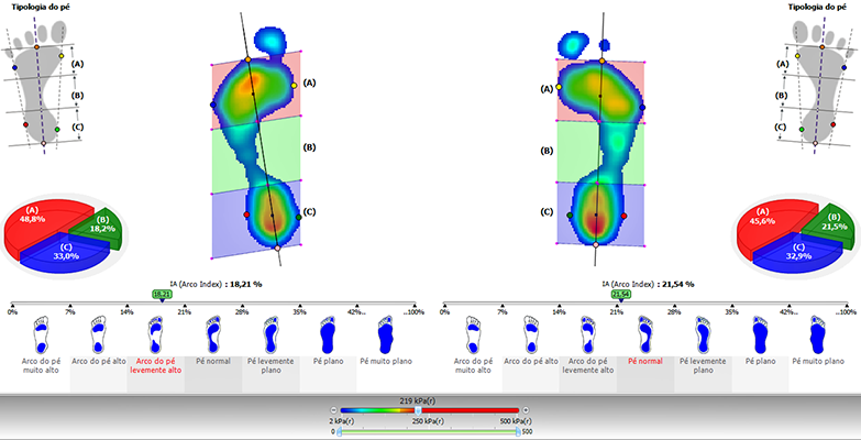 7bb62eff3aa Clínica e Cirurgia do Pé e Tornozelo  Baropodometria - Teste da Pisada