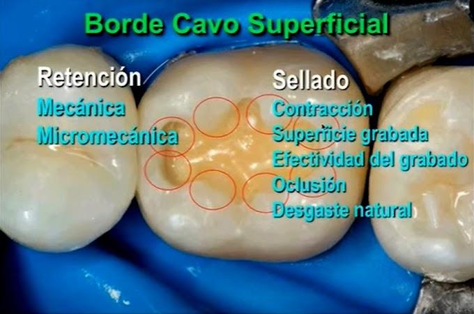 WEBINAR: ADHESIÓN en Odontología Restauradora - Dr. Roberto Espinosa Fernández