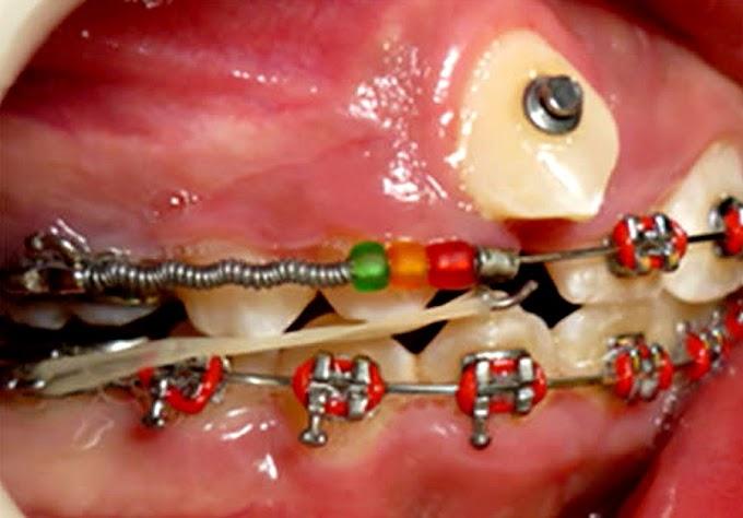 Tratamiento de ortodoncia sin extracción dental - Revisión de la literatura