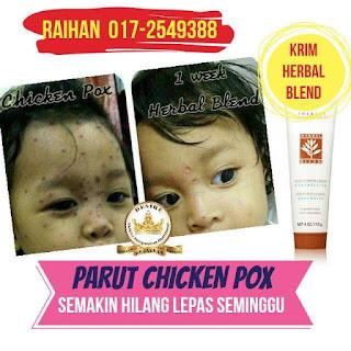 Testi Krim Herbal Blend Parut Chicken Pox Hilang