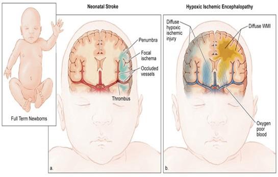 Cerebral Palsy dan Epilepsi - Gangguan Fisik
