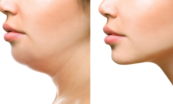 #Most ideal Ways To Reduce Face Fat#Health