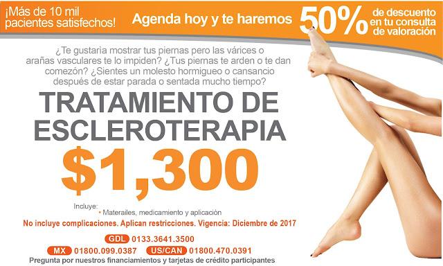 Tratamiento varices laser escleroterapia precio costo Guadalajara Mexico