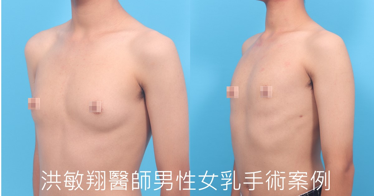 男性女乳推薦