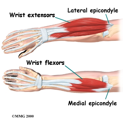 Tom's Physiotherapy Blog: Medial and Lateral Epicondylitis ...