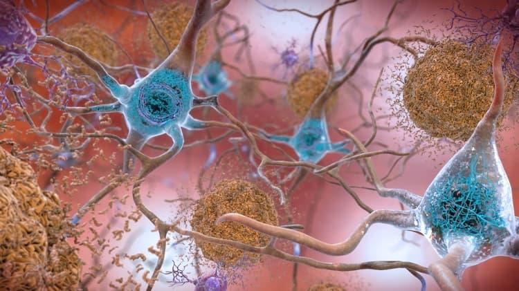 Boala Alzheimer plăci beta-amiloid şi tau în creier