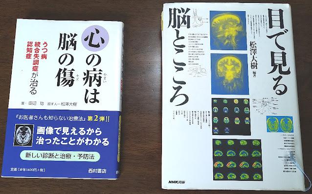書籍「目で見る脳とこころ」と「心の病は脳の傷」の本の表紙