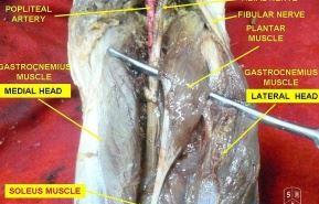 Anatomi M.Plantaris: Origo, Insersio, Persarafan, Perdarahan, Dan Fungsi