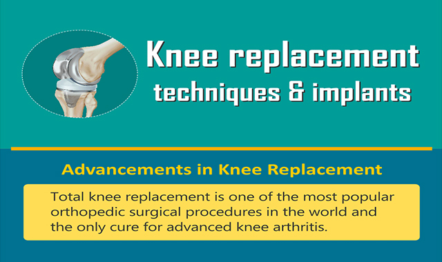 Knee Replacement Techniques and Implants #infographic