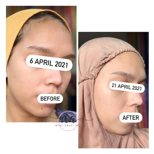 Radiant Serum by Airin Beautycare