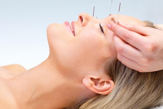 Châm cứu tăng cường lưu thông mạch máu, giảm đau đầu hiệu quả