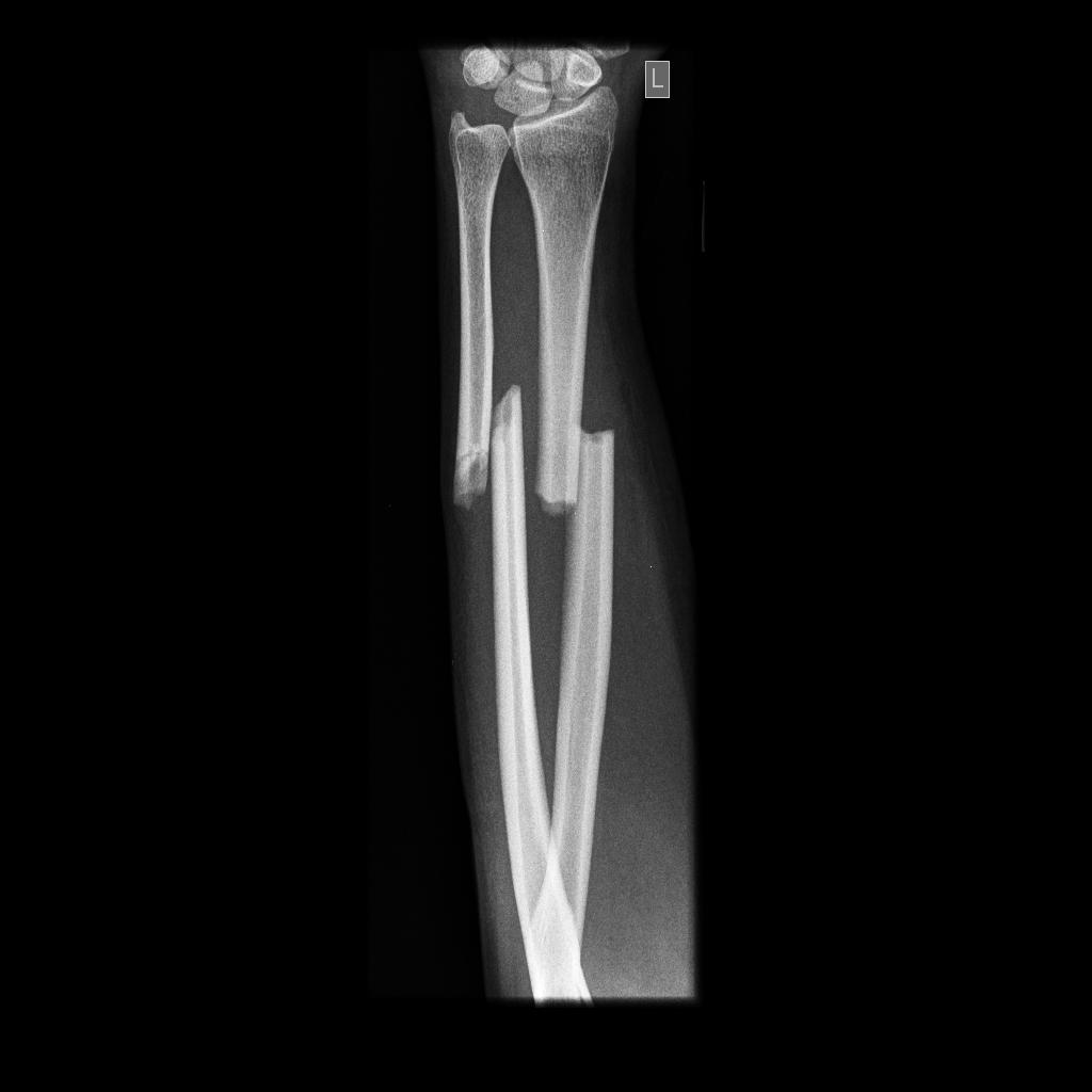Diagram Of Tibia Stress Fracture Harley 4 Speed Transmission Left Ulna Bone Bing Images