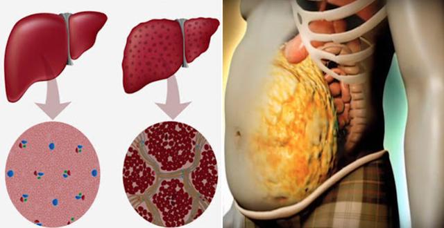 liver, fatty liver, stressed liver, detox