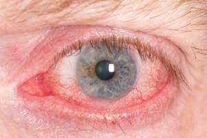 Obat Mata Kering Dan Perih