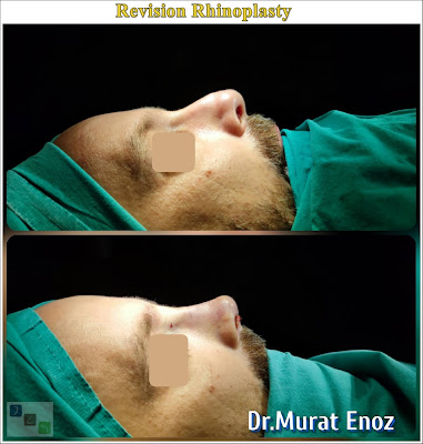 Revision Nose Job Turkey,Revision Rhinoplasty Operation in Istanbul,