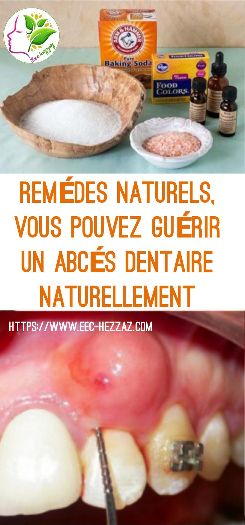 Remèdes naturels, vous pouvez guérir un abcès dentaire naturellement