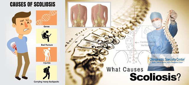 Common causes of Scoliosis in Malaysia