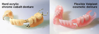 valplast,valplast partial,valplast-,valplas,valplast denture,valplast dentaire,valplast dentures,valplast partials,valplast material,gigi palsu valplast,valplast soft dentures,what is valplast denture,gigi palsu valplas,machine valplast dentaire,valplast partial dentures,valplast flexible dentures,harga gigi palsu valplast dan akrilik,bedanya gigi palsu valplast dan akrilik,plastic,valplast flexible dentures dentures