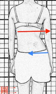 脊椎側彎, 脊椎側彎矯正, 脊椎側彎治療, 脊椎側彎 物理治療