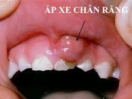Hình ảnh người bệnh bị áp xe chân răng