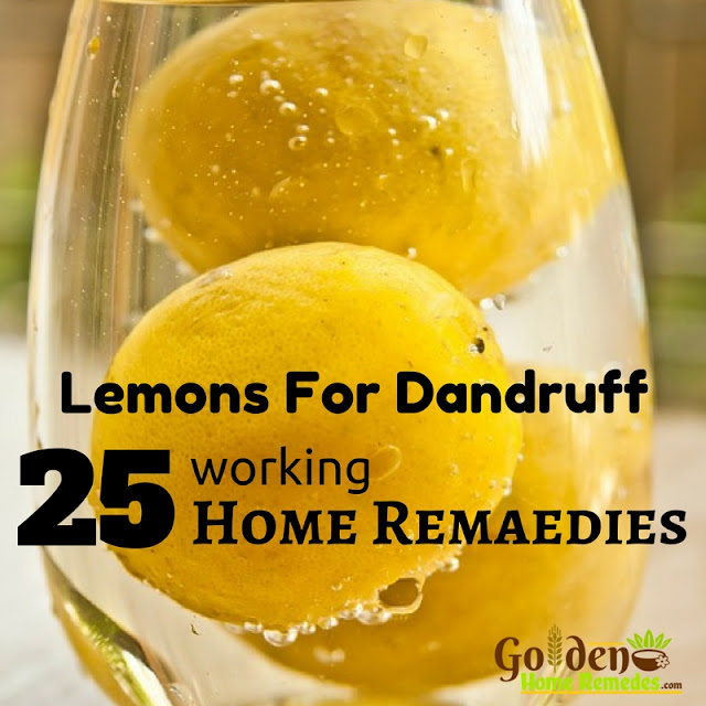 Lemon For Dandruff, How To Use Lemon For Dandruff, How To Get Rid Of Dandruff, How To Remove Dandruff, Home Remedies For Dandruff, Dandruff Treatment, Dandruff Remedies, Treatment For Dandruff, Dandruff Home Remedy