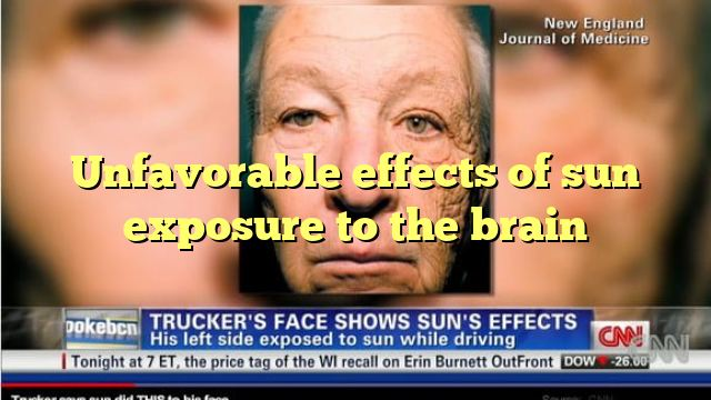Unfavourable effects of sun exposure to the brain