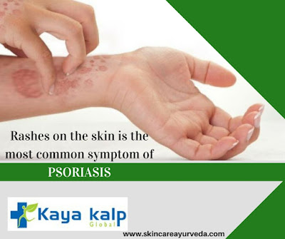 http://skincareayurveda.com/ayurveda-treatment-for-psoriasis/
